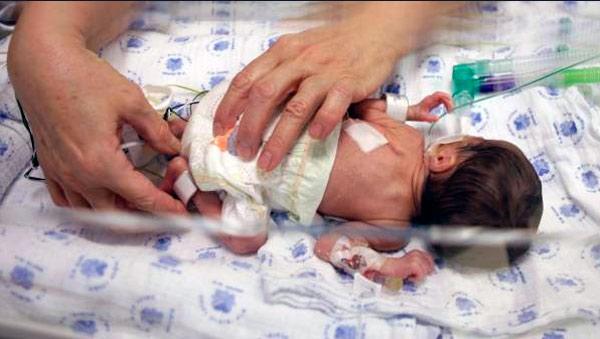 niños prematuros